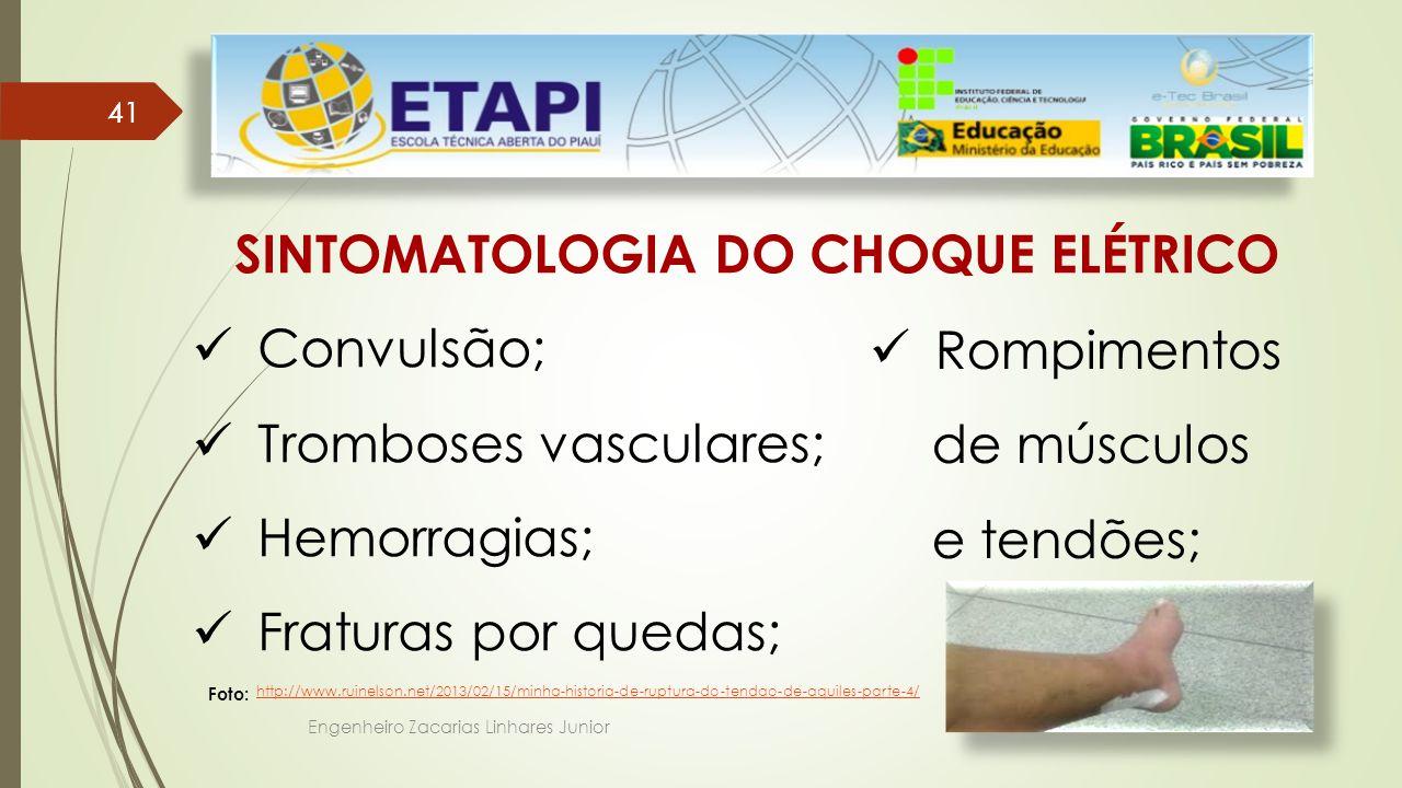 SINTOMATOLOGIA DO CHOQUE ELÉTRICO