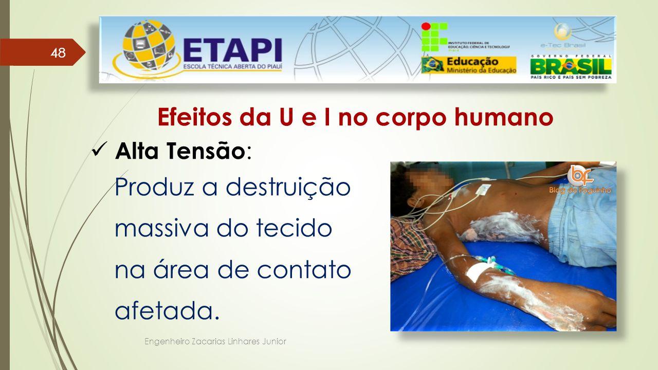 Efeitos da U e I no corpo humano