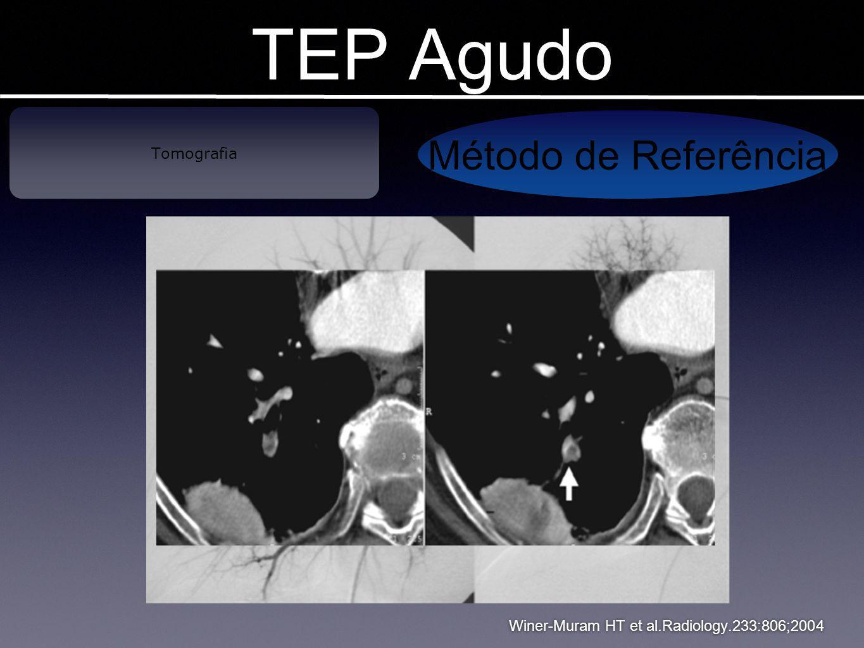 Winer-Muram HT et al.Radiology.233:806;2004