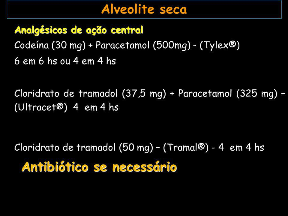 Alveolite seca Analgésicos de ação central