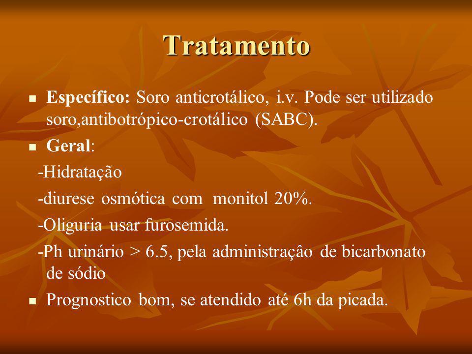 Tratamento Específico: Soro anticrotálico, i.v. Pode ser utilizado soro,antibotrópico-crotálico (SABC).