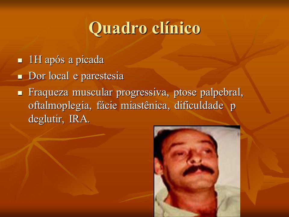 Quadro clínico 1H após a picada Dor local e parestesia