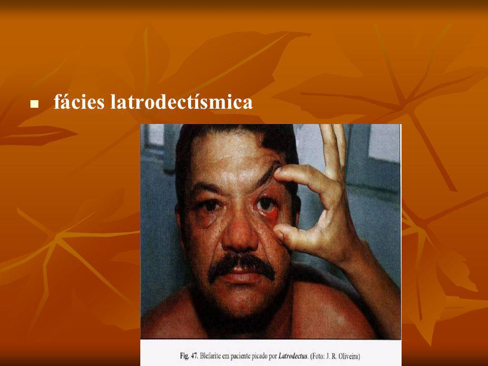 fácies latrodectísmica