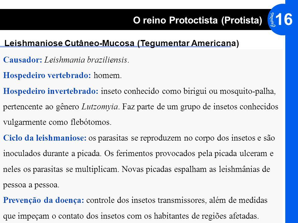 Leishmaniose Cutâneo-Mucosa (Tegumentar Americana)
