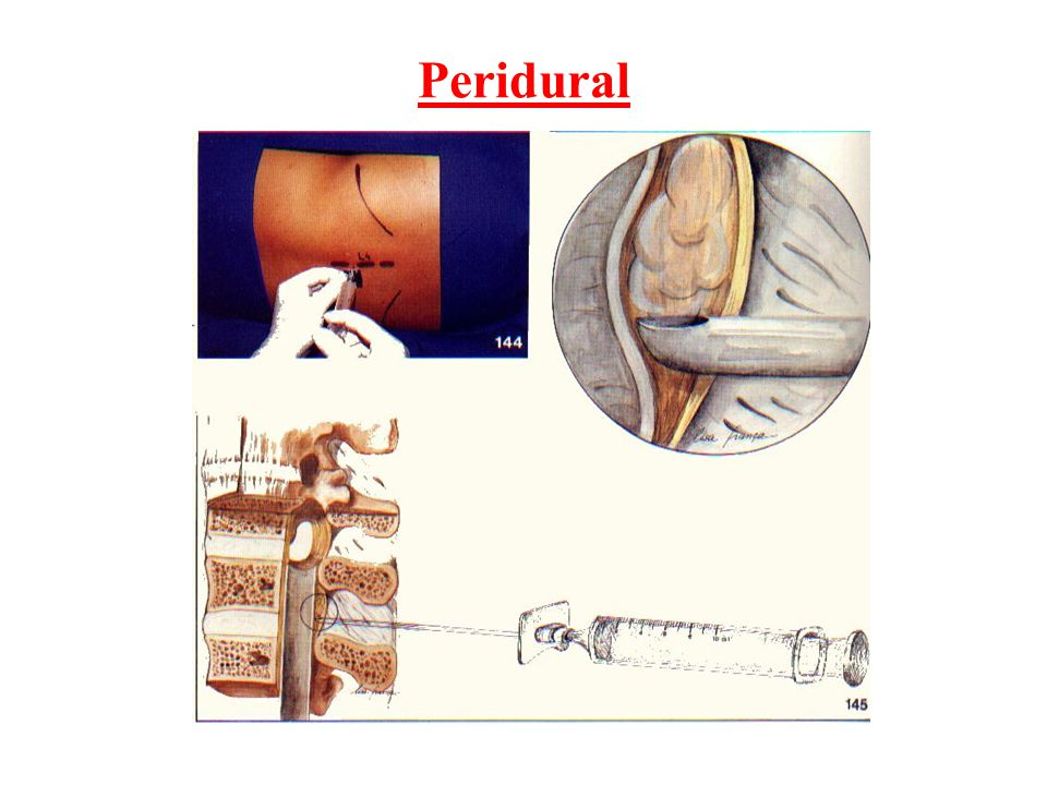 Peridural