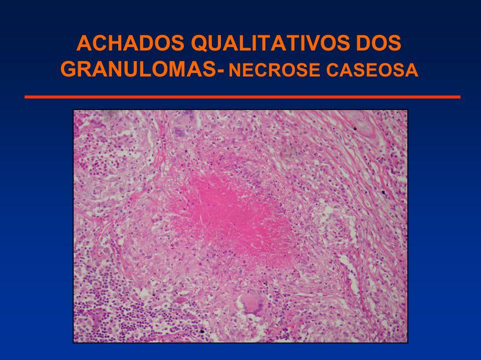 ACHADOS QUALITATIVOS DOS GRANULOMAS- NECROSE CASEOSA