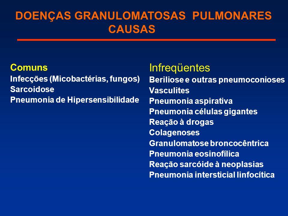 DOENÇAS GRANULOMATOSAS PULMONARES CAUSAS