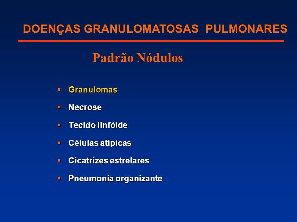 DOENÇAS GRANULOMATOSAS PULMONARES Padrão Nódulos