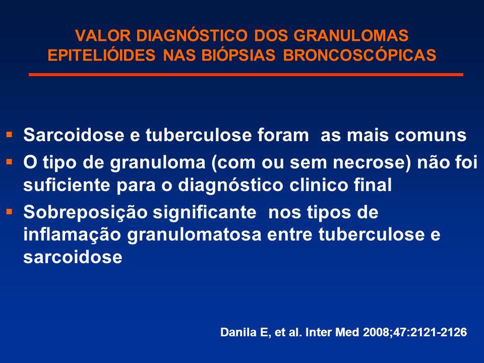 Sarcoidose e tuberculose foram as mais comuns