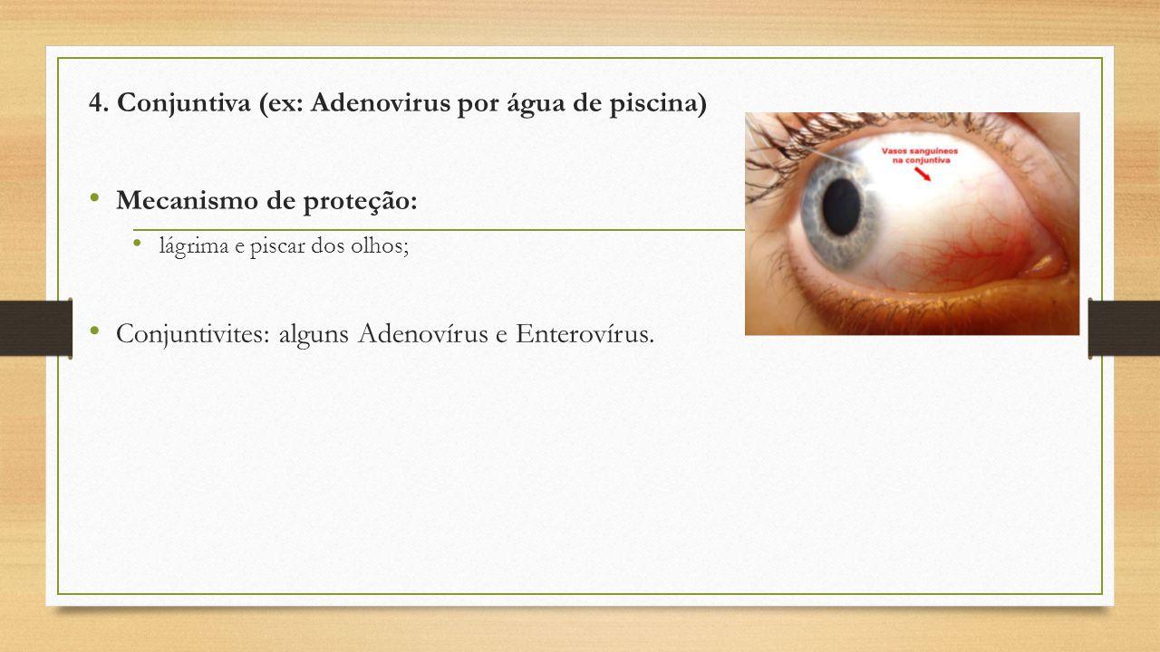 4. Conjuntiva (ex: Adenovirus por água de piscina)