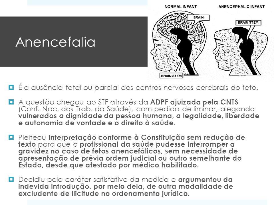 Anencefalia É a ausência total ou parcial dos centros nervosos cerebrais do feto.