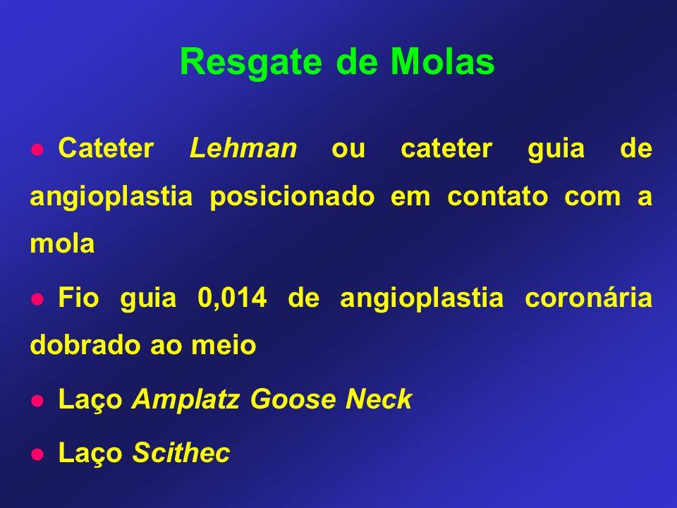 Resgate de Molas Cateter Lehman ou cateter guia de angioplastia posicionado em contato com a mola.
