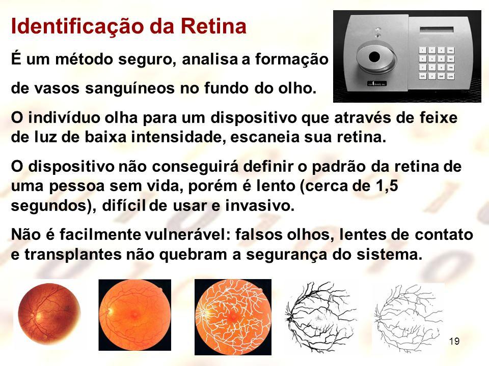 Identificação da Retina