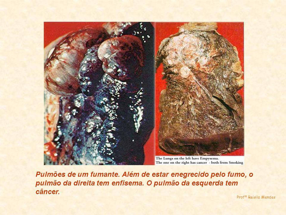 Pulmões de um fumante. Além de estar enegrecido pelo fumo, o pulmão da direita tem enfisema. O pulmão da esquerda tem câncer.