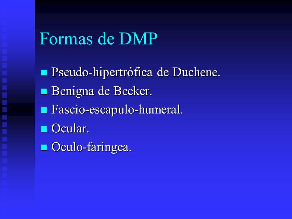 Formas de DMP Pseudo-hipertrófica de Duchene. Benigna de Becker.