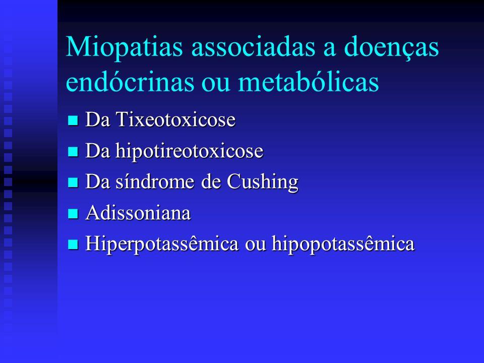 Miopatias associadas a doenças endócrinas ou metabólicas