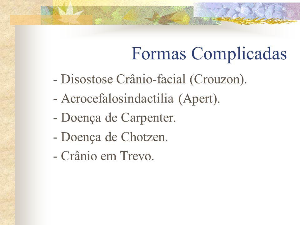 Formas Complicadas - Disostose Crânio-facial (Crouzon).