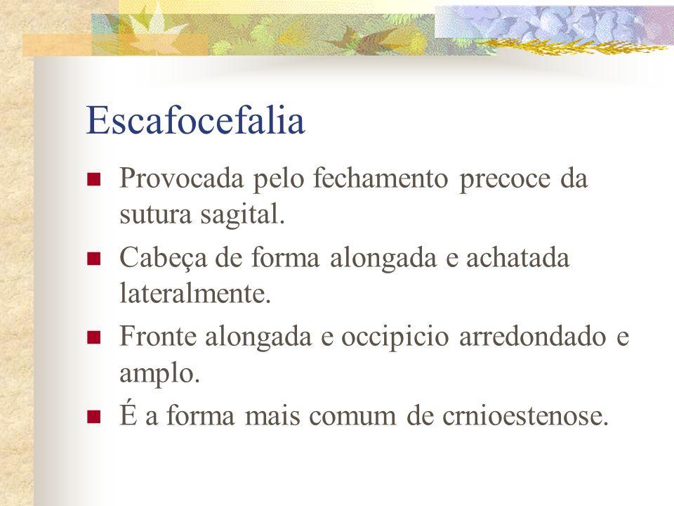 Escafocefalia Provocada pelo fechamento precoce da sutura sagital.