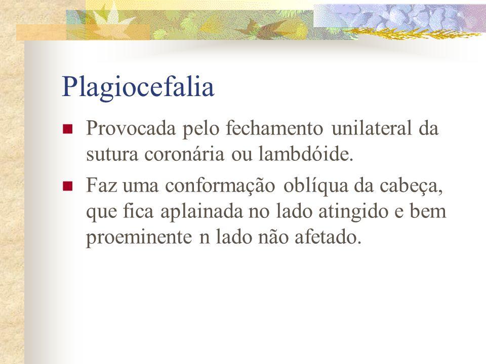 Plagiocefalia Provocada pelo fechamento unilateral da sutura coronária ou lambdóide.