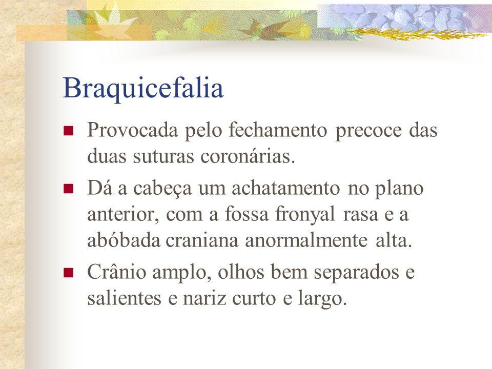 Braquicefalia Provocada pelo fechamento precoce das duas suturas coronárias.