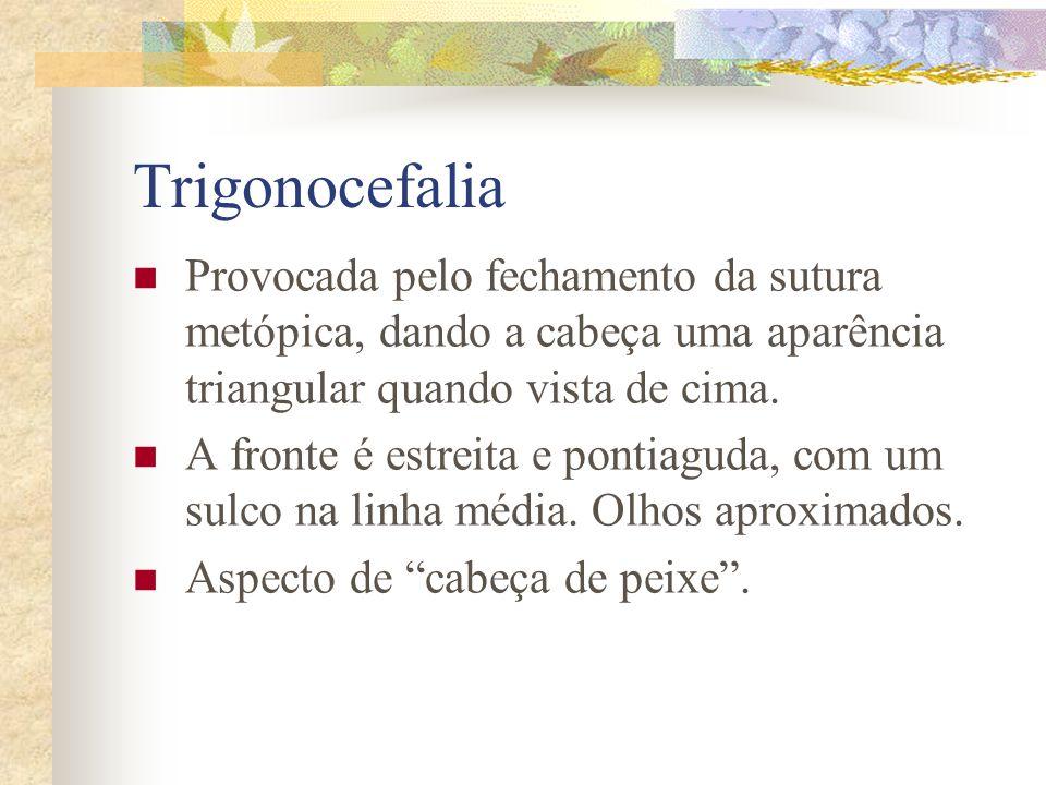 Trigonocefalia Provocada pelo fechamento da sutura metópica, dando a cabeça uma aparência triangular quando vista de cima.