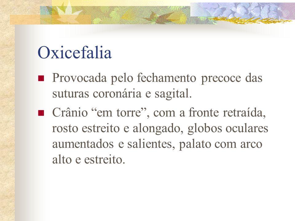 Oxicefalia Provocada pelo fechamento precoce das suturas coronária e sagital.