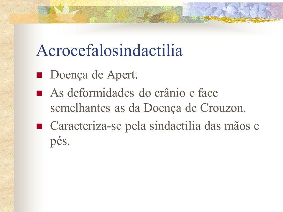 Acrocefalosindactilia