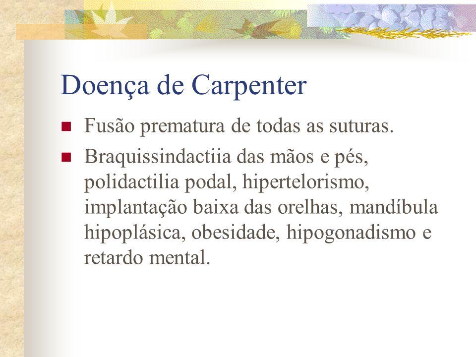 Doença de Carpenter Fusão prematura de todas as suturas.
