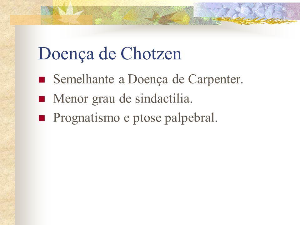 Doença de Chotzen Semelhante a Doença de Carpenter.