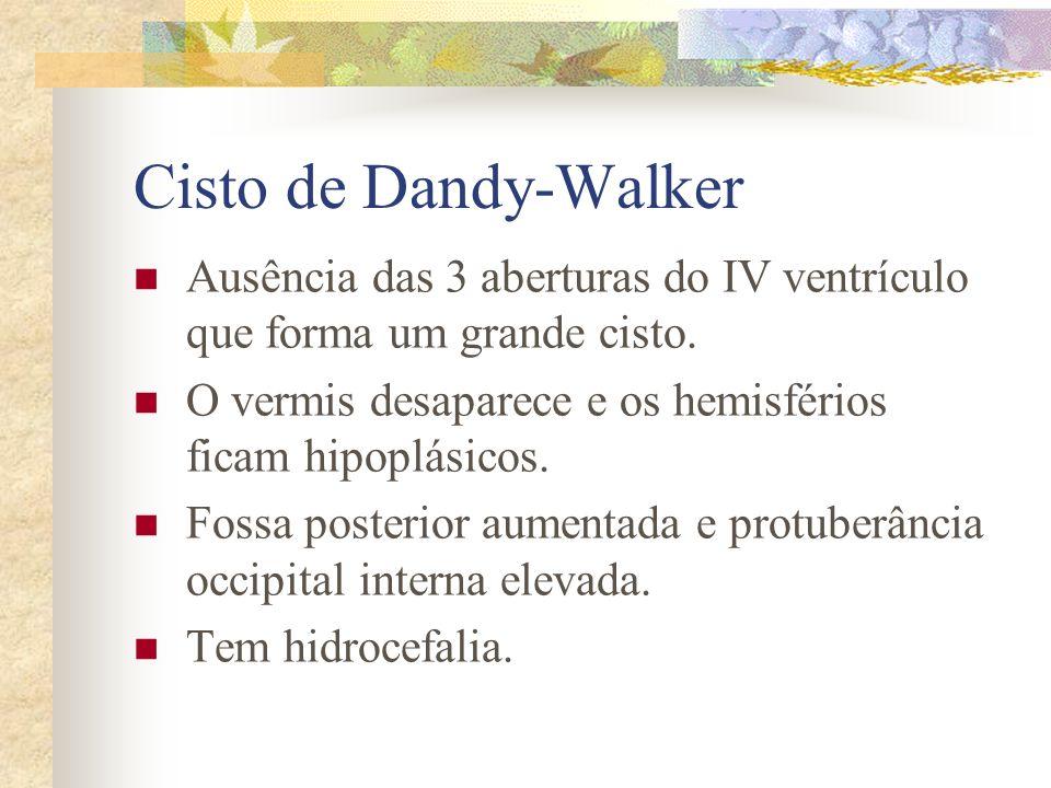 Cisto de Dandy-Walker Ausência das 3 aberturas do IV ventrículo que forma um grande cisto. O vermis desaparece e os hemisférios ficam hipoplásicos.