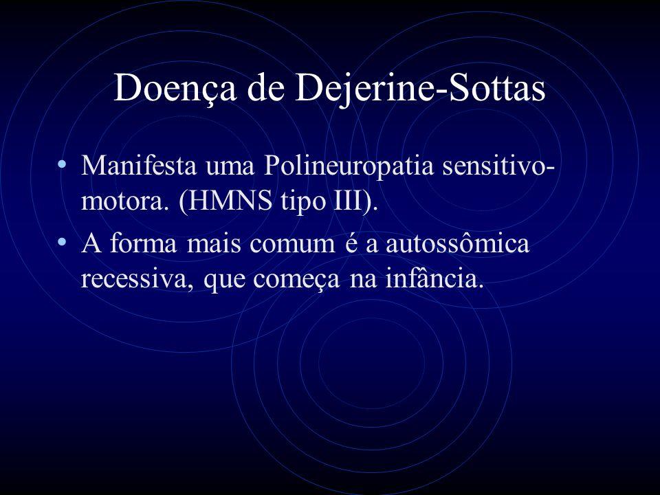 Doença de Dejerine-Sottas