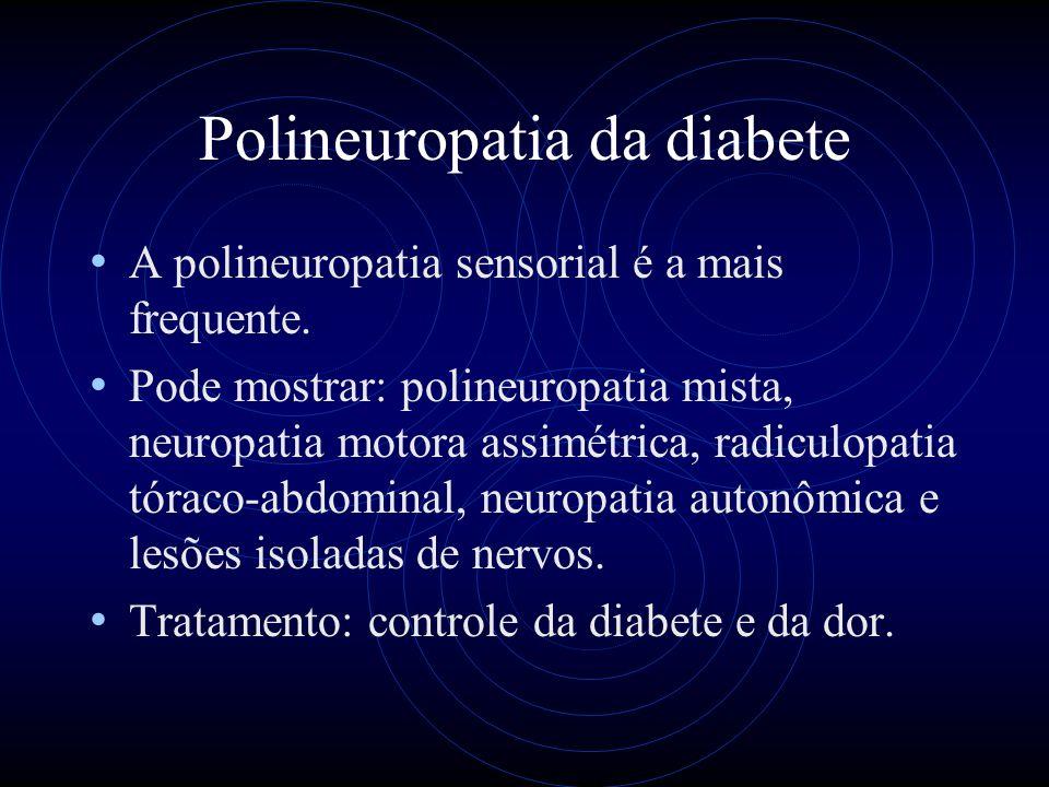 Polineuropatia da diabete