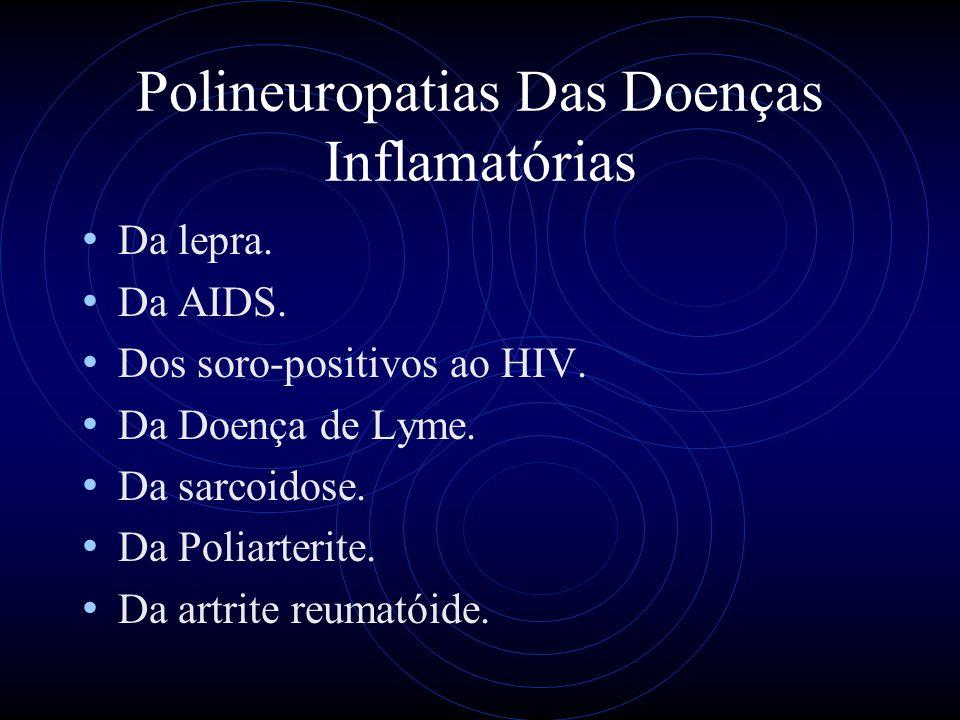 Polineuropatias Das Doenças Inflamatórias