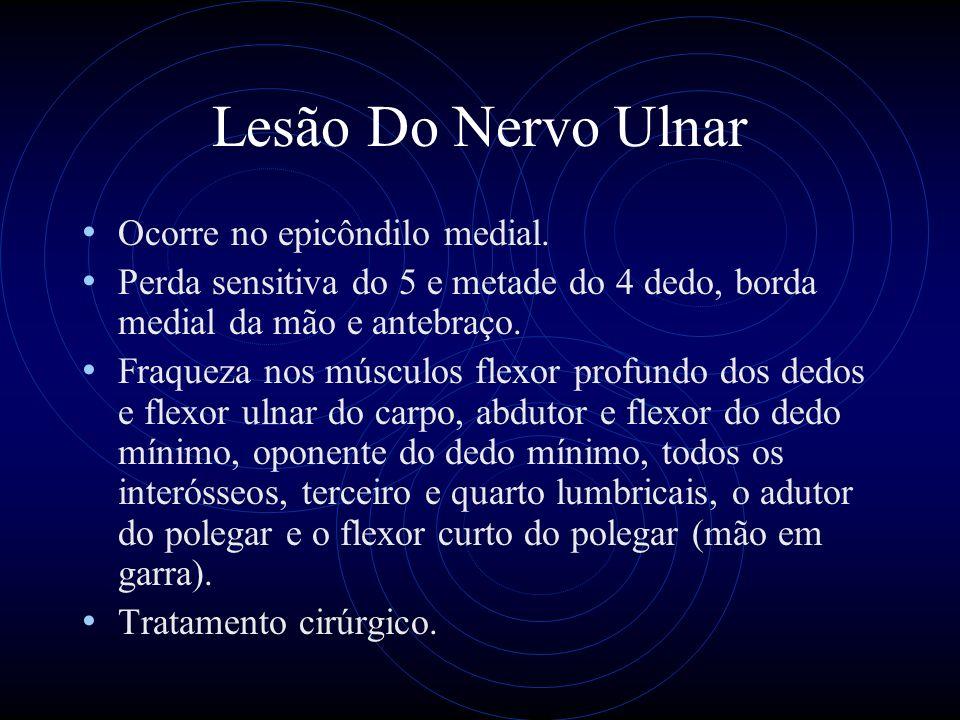 Lesão Do Nervo Ulnar Ocorre no epicôndilo medial.