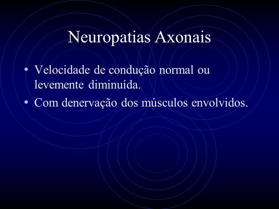 Neuropatias Axonais Velocidade de condução normal ou levemente diminuída.