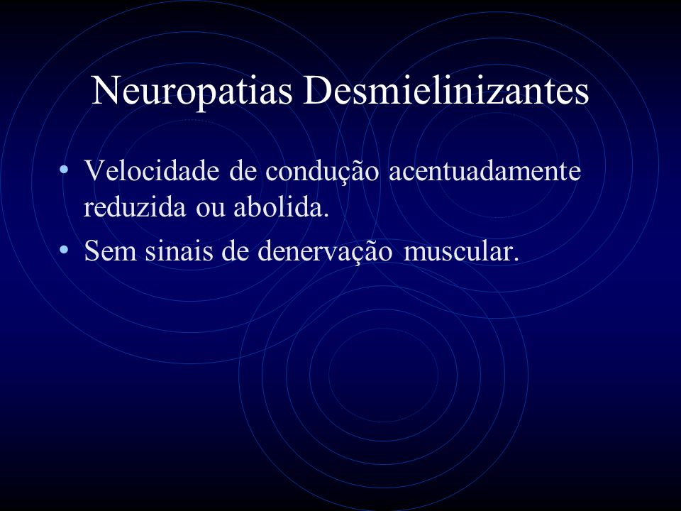 Neuropatias Desmielinizantes