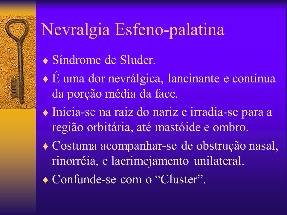 Nevralgia Esfeno-palatina