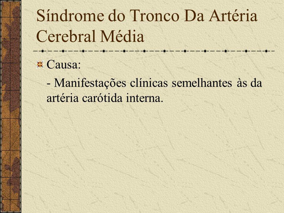 Síndrome do Tronco Da Artéria Cerebral Média
