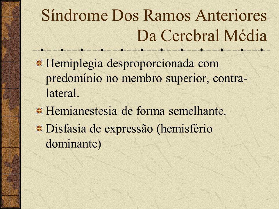 Síndrome Dos Ramos Anteriores Da Cerebral Média