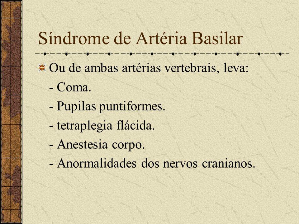 Síndrome de Artéria Basilar