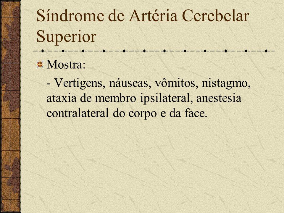 Síndrome de Artéria Cerebelar Superior