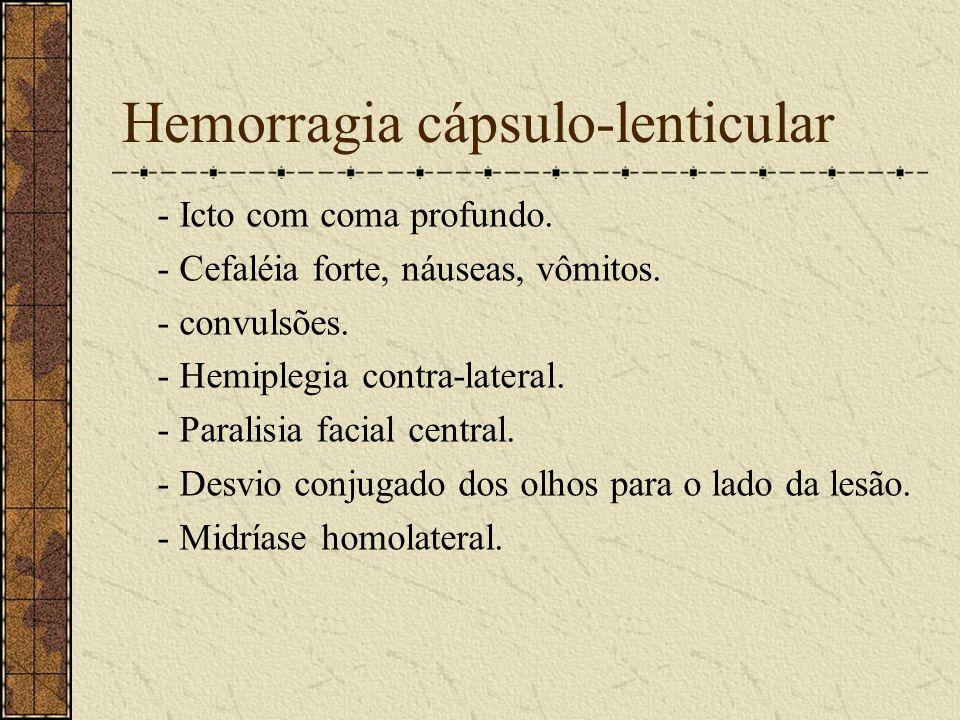 Hemorragia cápsulo-lenticular
