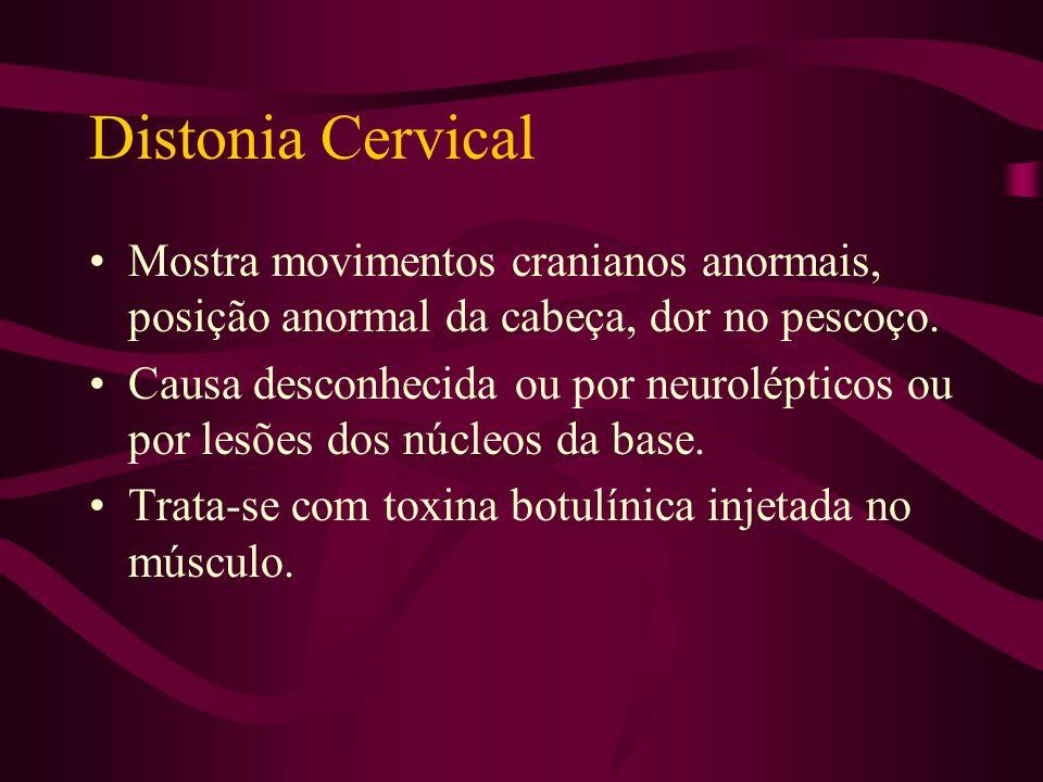 Distonia Cervical Mostra movimentos cranianos anormais, posição anormal da cabeça, dor no pescoço.