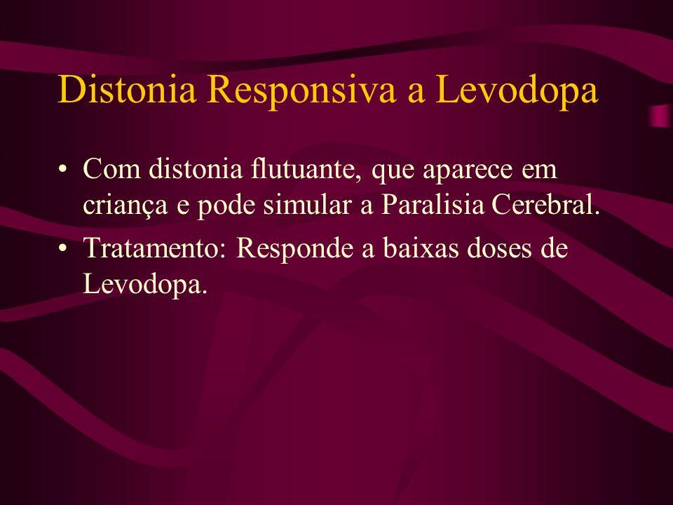 Distonia Responsiva a Levodopa