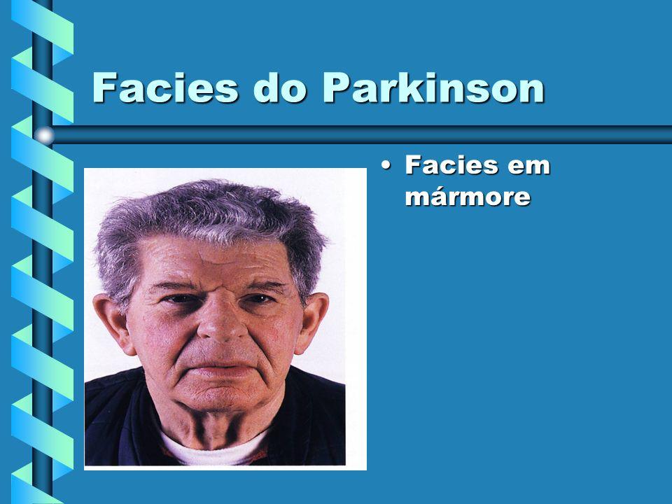 Facies do Parkinson Facies em mármore
