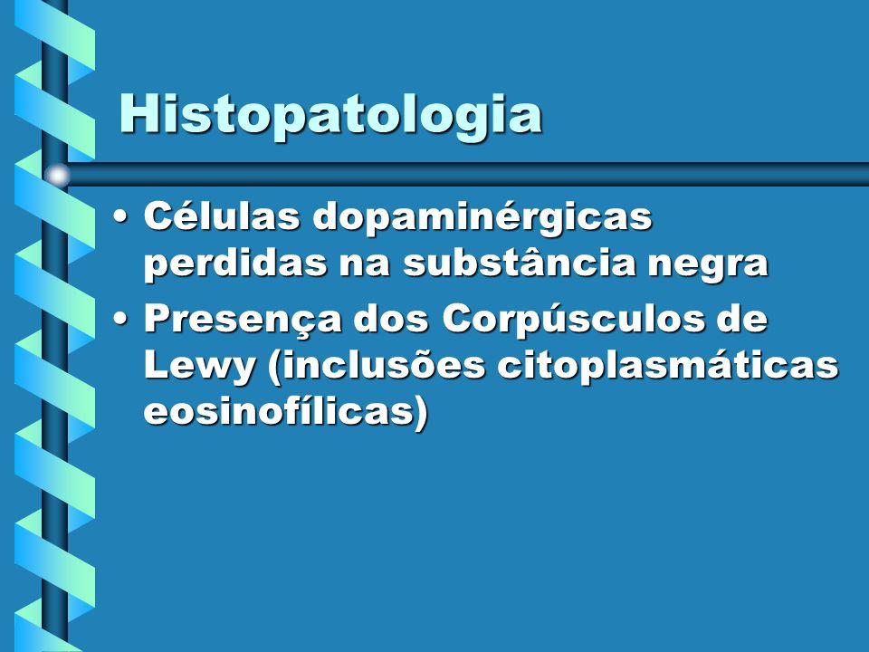 Histopatologia Células dopaminérgicas perdidas na substância negra