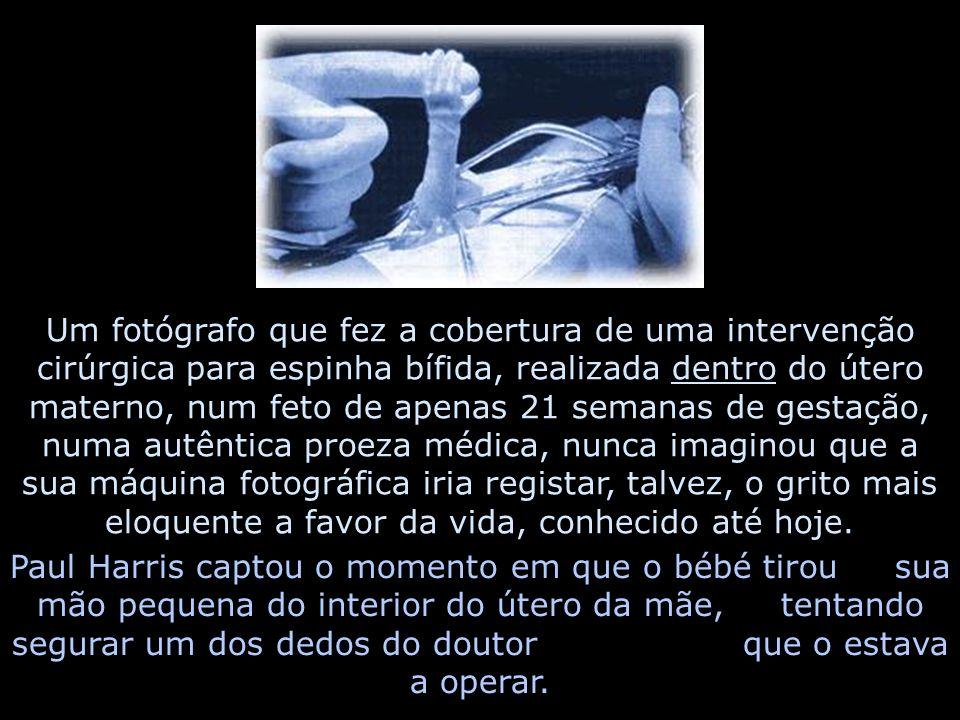 Um fotógrafo que fez a cobertura de uma intervenção cirúrgica para espinha bífida, realizada dentro do útero materno, num feto de apenas 21 semanas de gestação, numa autêntica proeza médica, nunca imaginou que a sua máquina fotográfica iria registar, talvez, o grito mais eloquente a favor da vida, conhecido até hoje.