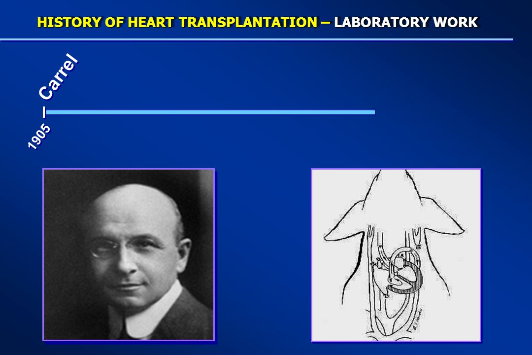 HISTORY OF HEART TRANSPLANTATION – LABORATORY WORK