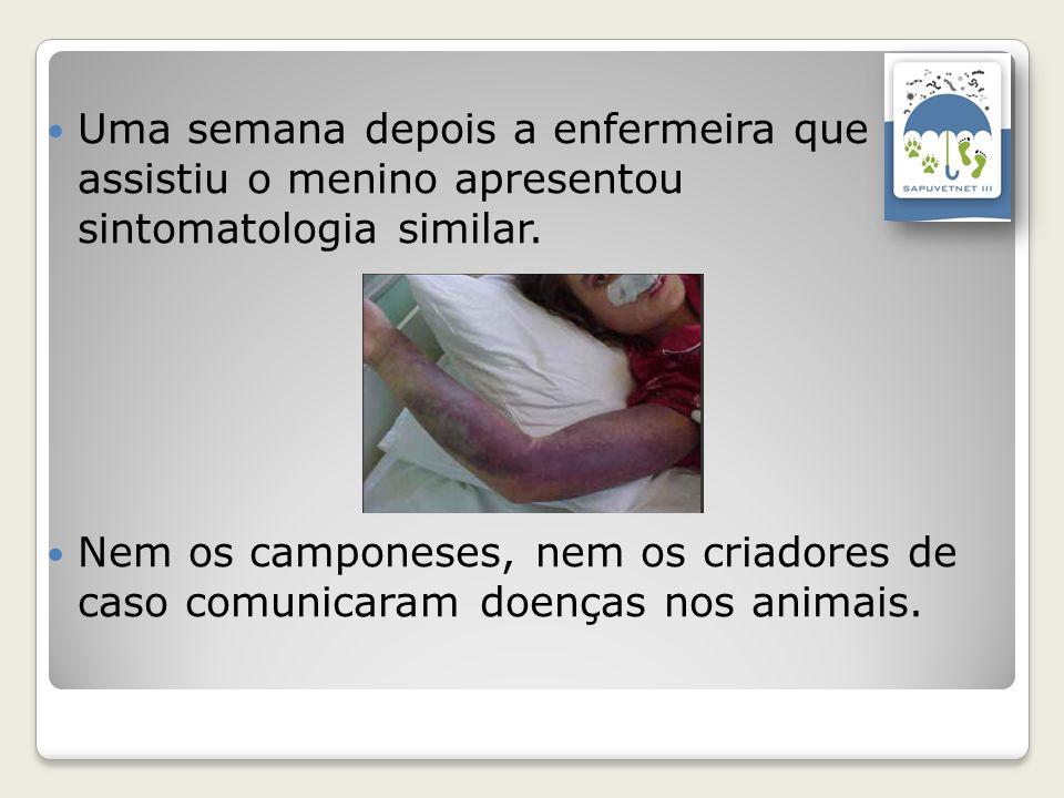 Uma semana depois a enfermeira que assistiu o menino apresentou sintomatologia similar.