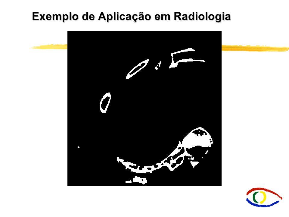 Exemplo de Aplicação em Radiologia